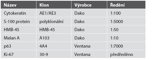 Seznam použitých primárních protilátek.