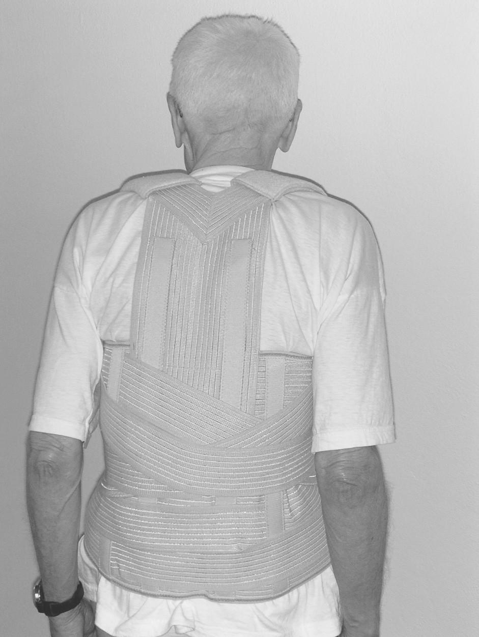 Pacient JŠ – korzet s fixací přes ramena.