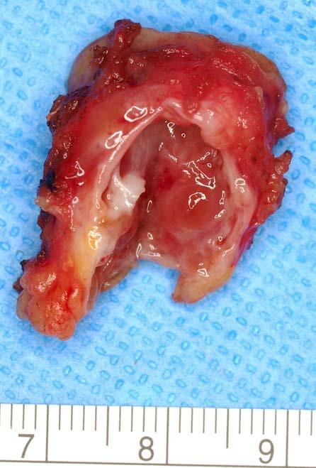 <i>Multilokulární cystická renální neoplaziebnízkého maligního potenciálu</i> Fig. 2.<i>Multilocular cystic renal neoplasm of lowbmalignant potential</i>