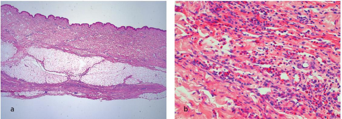 Histologické vyšetření kůže, podkoží a svalů. V přehledném obraze (a) je patrná atrofická epidermis, rozšířené fibrotizované korium s lymfocytárními zánětlivými infiltráty. V detailu (b) je patrná i příměs eozinofilů v infiltrátech.