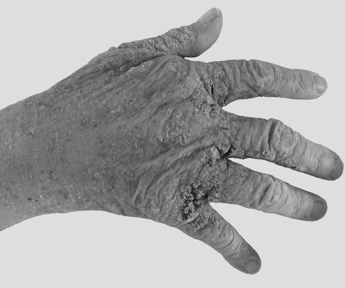 Fig. 2. Hyperkeratotic-crusted lesions were localised on the dorsal aspects of the hands and between the fingers.
