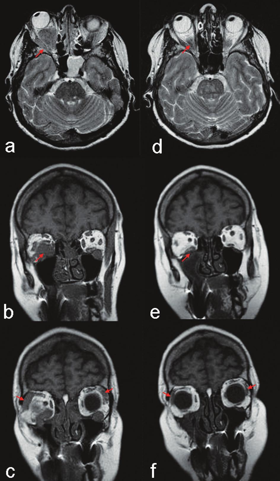 MR vyšetření (T2 tra a T1 cor): Před startem terapie objemný infiltrát oboustranně v n. maxillaris, vpravo podél m. rectus inferior a lateralis a pravostranný exoftalmus (část a, b - šipky); oboustranně, ale více vpravo, zbytnělá slzná žláza (část c, šipky). Kontrola za tři měsíce: minimální reziduum infiltrátu při m. rectus inferior, výrazný ústup exoftalmu (část d,  e - šipky) a velikosti obou slzných žláz (část f, šipky). Pravá strana je z pohledu vyšetřované osoby jako na obrázku 2.