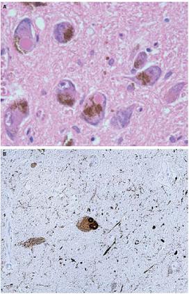 Klasické Lewyho telieska v substantia nigra v rutinnom farbení hematoxylínom-eosinom (A) a imunohistochemickom farbení alfa-synukleinom (B). Fig. 1. Typical Lewy bodies in the substantia nigra under routine hematoxylin and eosin staining (A) and immunohistochemical staining with alpha-synuclein (B).