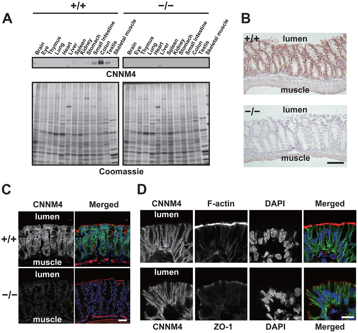 Basolateral localization of CNNM4 in the intestinal epithelia.