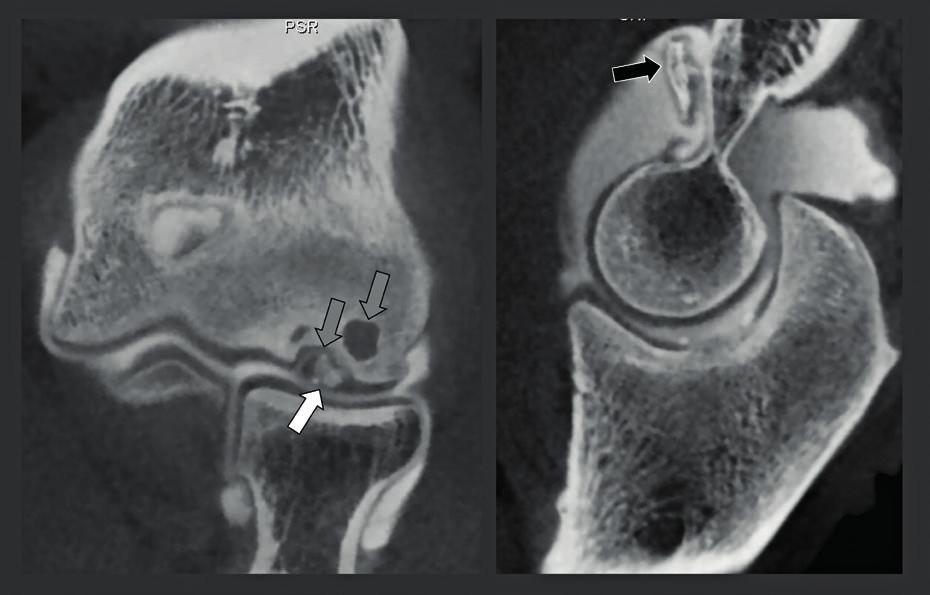 CBCT-artrografie u pacienta s osteochondritis dissecans lokte.
