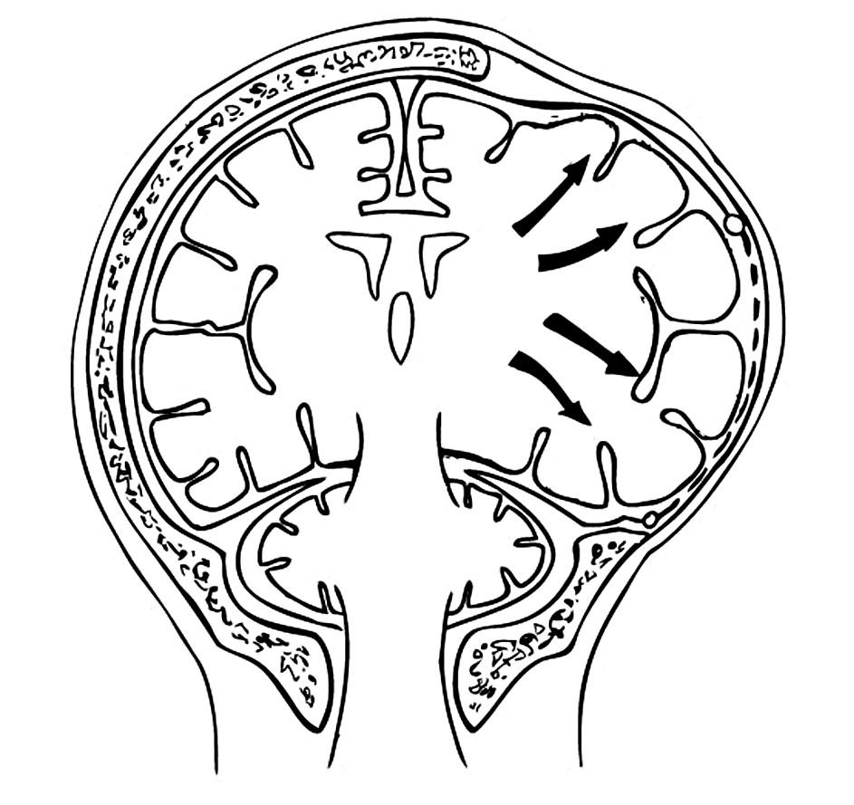 Dostatečný rozsah dekompresivní kraniotomie uvolní mozkovou hemisféru bez sekundárního poškození Pic. 9. Sufficient extent of the decompression craniotomy procedure releases the cerebral hemisphere without any secondary damage.