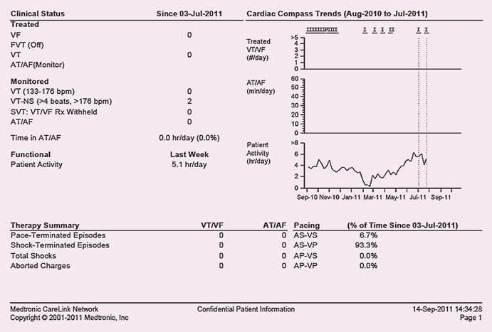 Graf denní aktivity, pokles v období od listopadu do března svědčící pro zhoršení srdečního selhání.