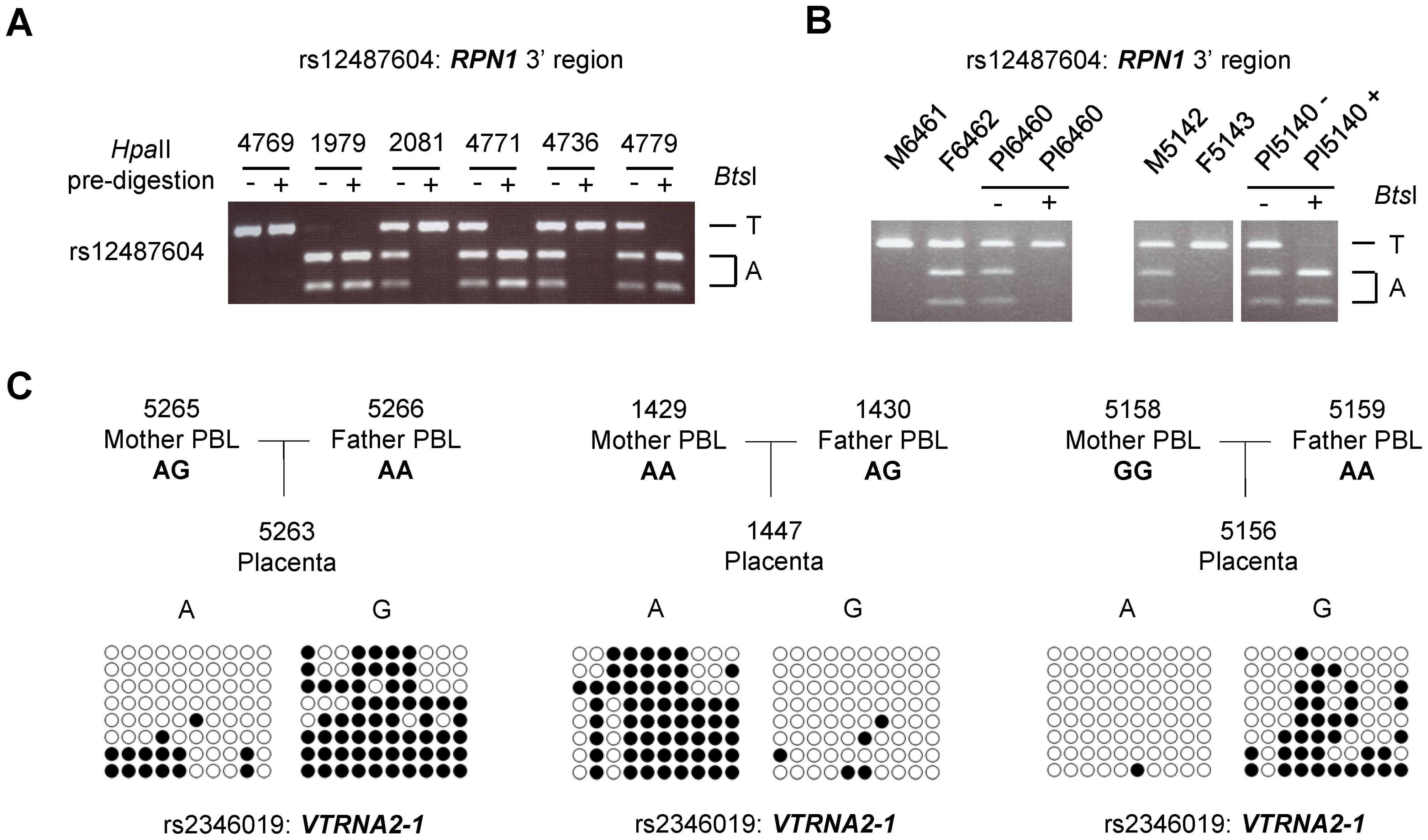 ASM downstream of the <i>RPN1</i> gene and in the <i>VTRNA2-1</i> gene is due to genomic imprinting with hypermethylation of the maternal allele.