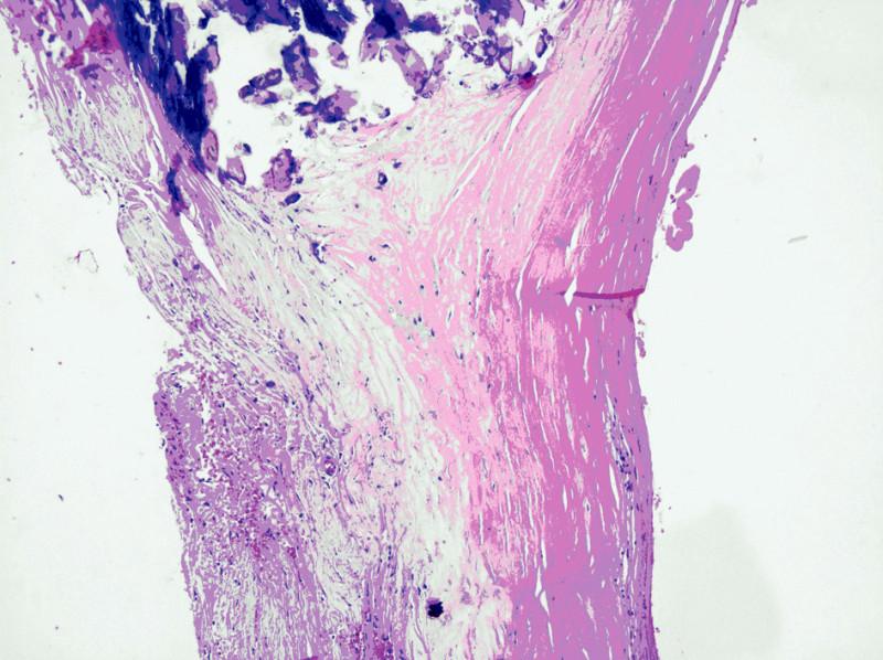 Histologický obraz stěny aneuryzmatu lienální tepny Fig. 5. Histological findings of the aneurysmal wall of the lienal artery