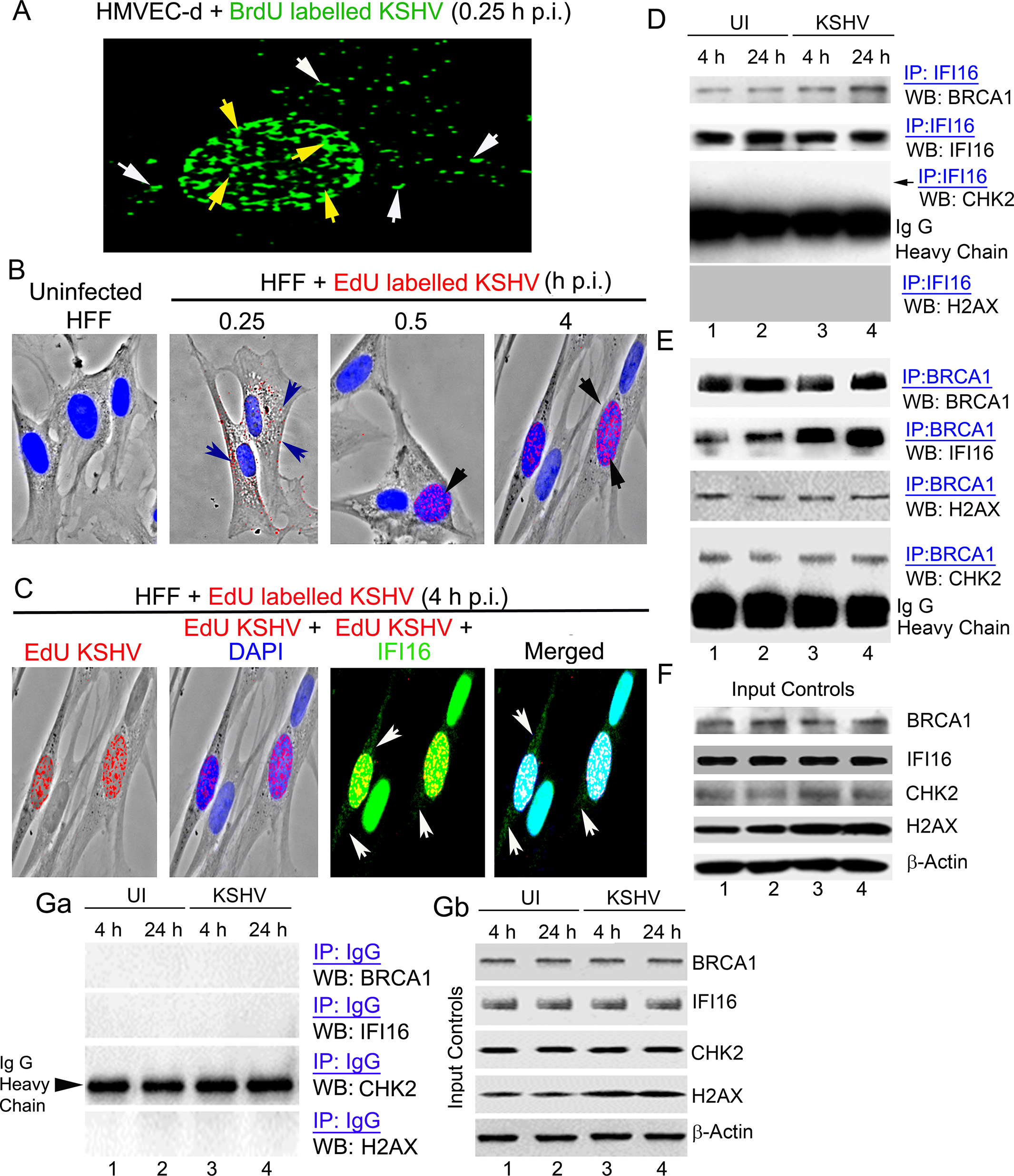 Enhanced interaction of IFI16 with BRCA1 but not with other DNA damage response proteins during <i>de novo</i> KSHV infection.