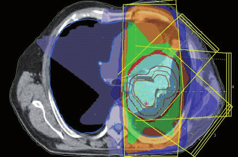 Dávkové rozložení pro konturaci z obr. 8. Světle modře je vyznačena 95% izodóza. Evidentní zmenšení léčeného objemu.