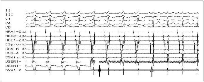 Úspěšná ablace akcesorní spojky. Obraz preexcitace na povrchovém EKG, akcesorní spojka lokalizována na levé volné stěně (splynulý potenciál síní a komor v koronárním sinu z oblasti levé volné stěny – CSdist). Začátek aplikace RF-energie (černá šipka), v průběhu 3. sekundy aplikace RF-energie (šedá šipka) přerušení vedení akcesorní spojkou se změnou tvaru QRS-komplexu na povrchovém EKG a změnou aktivace v koronárním sinu – odpojení potenciálu síní a komor.