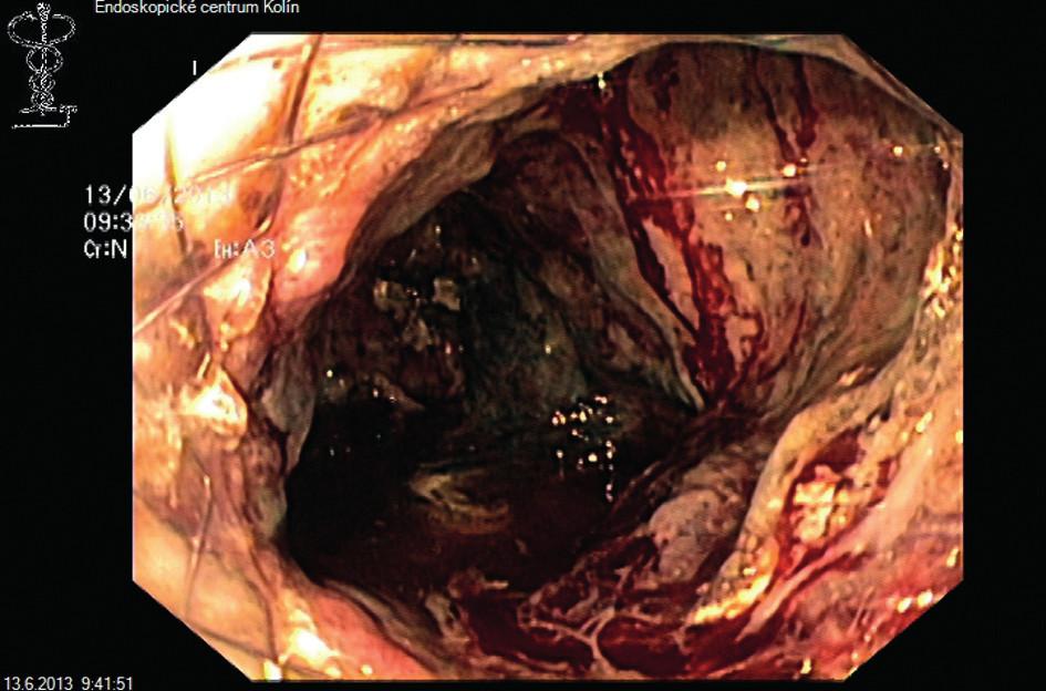 Videoasistovaná endoskopická perkutánní nekrektomie Fig. 4: Video-assisted endoscopic percutaneous necrectomy