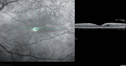 Diabetický edém makuly v OCT obraze pred a po intravitreálnej liečbe s antiVEGF ranibizumabom