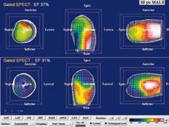 """55letý muž s akutním anteroextenzivním infarktem myokardu léčeným direktní perkutánní koronární intervencí (PCI) na ramus interventricularis anterior. Po průkazu neviabilního myokardu (dobutaminovo u echokardiografií, SPECT a PET) byl pacient randomizovaně zařazen do kontrolního souboru v projektu zkoumajícím efekt buněk kostní dřeně na reparaci infarktového ložiska. (a) Na tomografických řezech po aplikaci <sup>99m</sup>Tc- MIBI SPECT a <sup>18</sup>F- FDG levé komory v horizontální dlouhé ose je zobrazen """"perfuzně‑metabolický match"""" (jizva) anteriorně, anteroseptálně a apikálně. (b) Kvantifikace na polárních mapách u téhož pacienta svědčí pro rozsáhlý neviabilní myokard tvořící 56 % z levé komory a 90 % z povodí ramus interventricularis anterior (LAD). (c) Gated SPECT 3D zobrazení endokardiálního povrchu v end‑di astole (ED) a end‑systole (ES). Při vstupním vyšetření (horní řádek) je patrná hypokinéza přední stěny, septa a hrotu. Objemy v ED a ES byly výrazně zvýšené (239 ml, resp. 151 ml) a EF snížena na 37 %. Při kontrole za 3 měsíce po PCI (dolní řádek) je patrné, že regionální kinetika se nezlepšuje, naopak dochází k poinfarktové remodelaci s nárůstem objemů v ED a ES (299 ml, resp. ESV 205 ml) a dalšímu snížení EF na EF 31 %."""