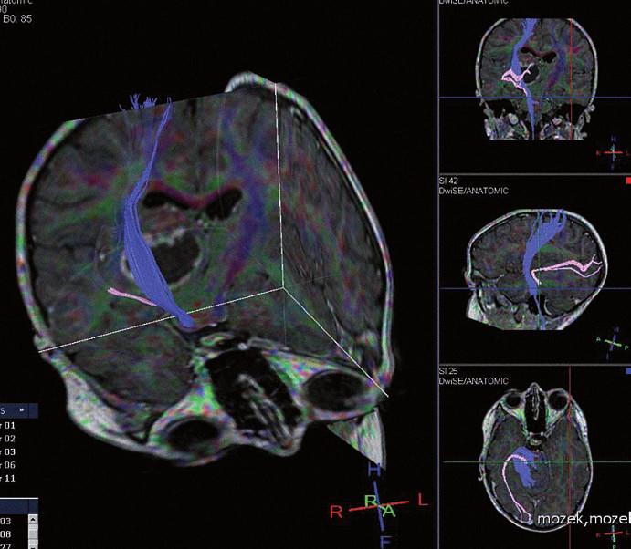DTI (Diff usion Tensor Imaging) kortikospinální dráhy (modře) a zrakové dráhy (růžově) a jejich vztah k tumoru thalamu.