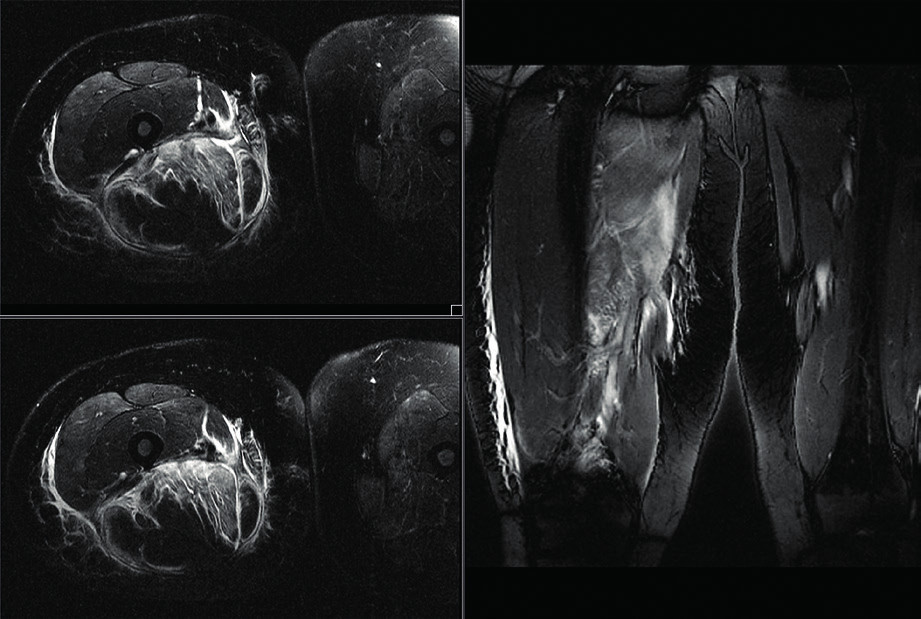 Fig. 1 T2-weighted MR images with fat saturation reveal areas of extensive myofascial edema of the right thigh, extending into the subcutaneous fatty tissue (prof. MUDr. J. Žižka Ph.D.)