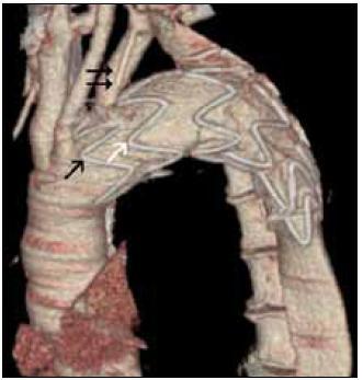 Obr. 3c. Kontrolní CT angiografie provedená s odstupem 3 měsíců po úspěšné léčbě. Dvojice šipek označuje odstup levé a. subclavia a šipka černá ukazuje na první (nepotažený protézou) drátěný segment umožňující proudění krve do podklíčkové tepny. Bílá šipka označuje další segment, který je jako i perifernější segmenty potažen protézou. Tak je eliminován aortální vřed i vstupní otvor do nepravého lumen, které se již neplní.