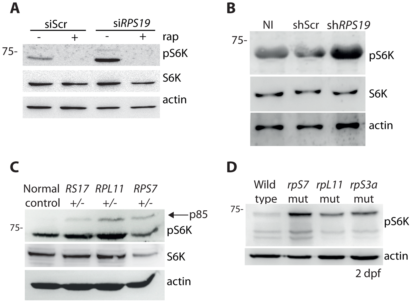 RP loss increases phospo-S6 kinase signaling.
