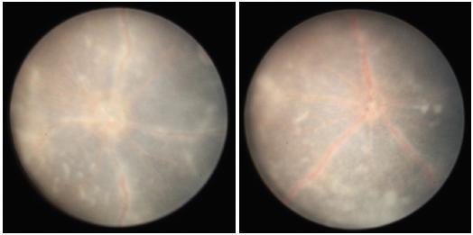 Obr. 4 a 5 Fotografie sítnice 20. den po indukci EAU, jsou přítomny infiltráty v sítnici, opouzdřené cévy a edém terče zrakového nervu