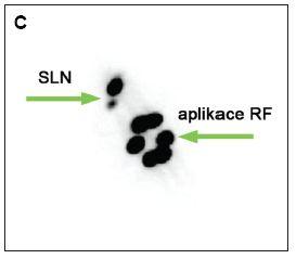 Zobrazení sentinelových uzlin v pravé axile po periareolární subdermální aplikaci, peroperačně exstirpovány 2 sentinelové uzliny A – časné dynamické skeny, projekce RAO B – pozdní statický sken, projekce ANT C – pozdní statický sken, projekce RAO