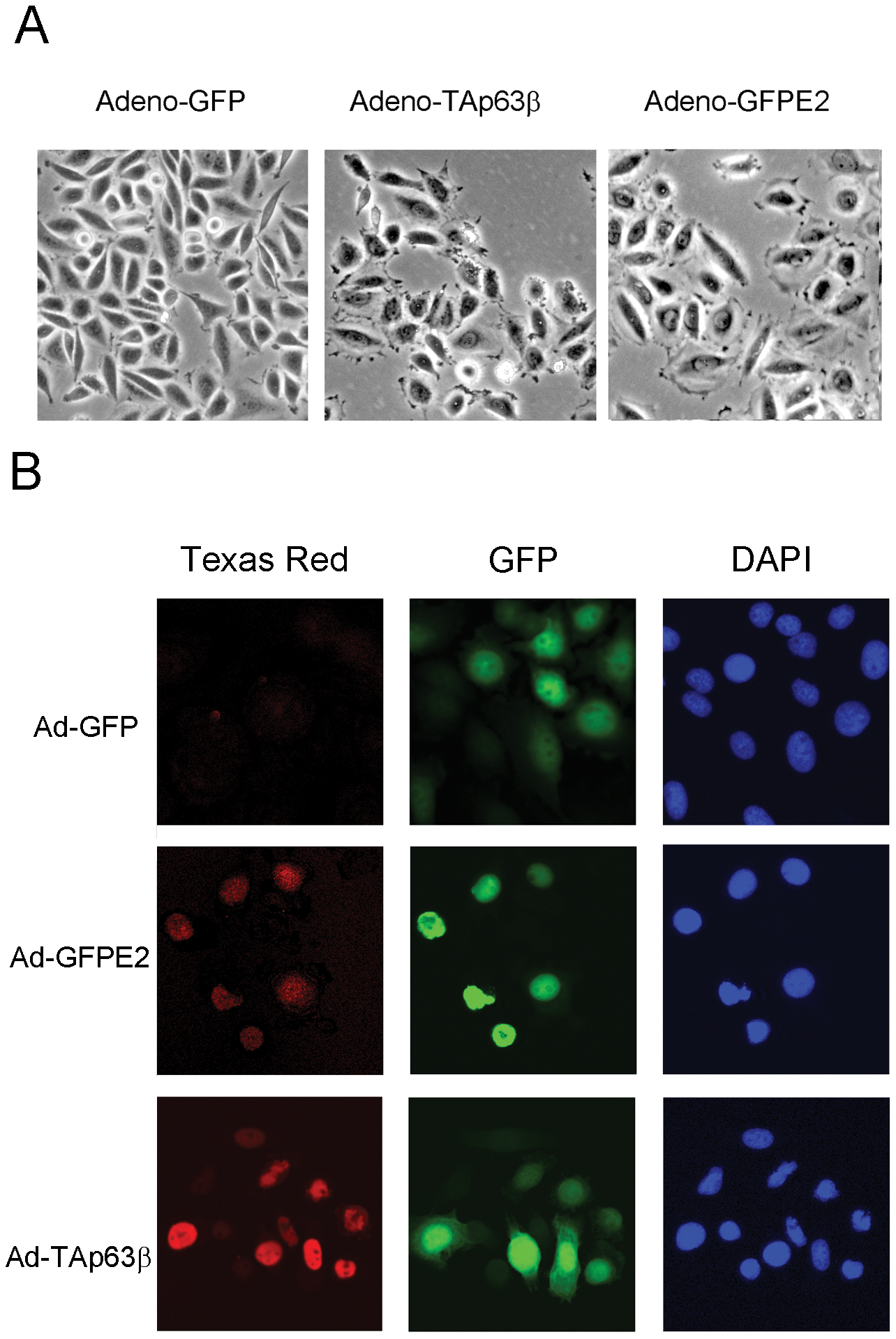 E6/E7 repression by E2 and ectopic expression TAp63β induce phenotypic changes in SiHa cells.