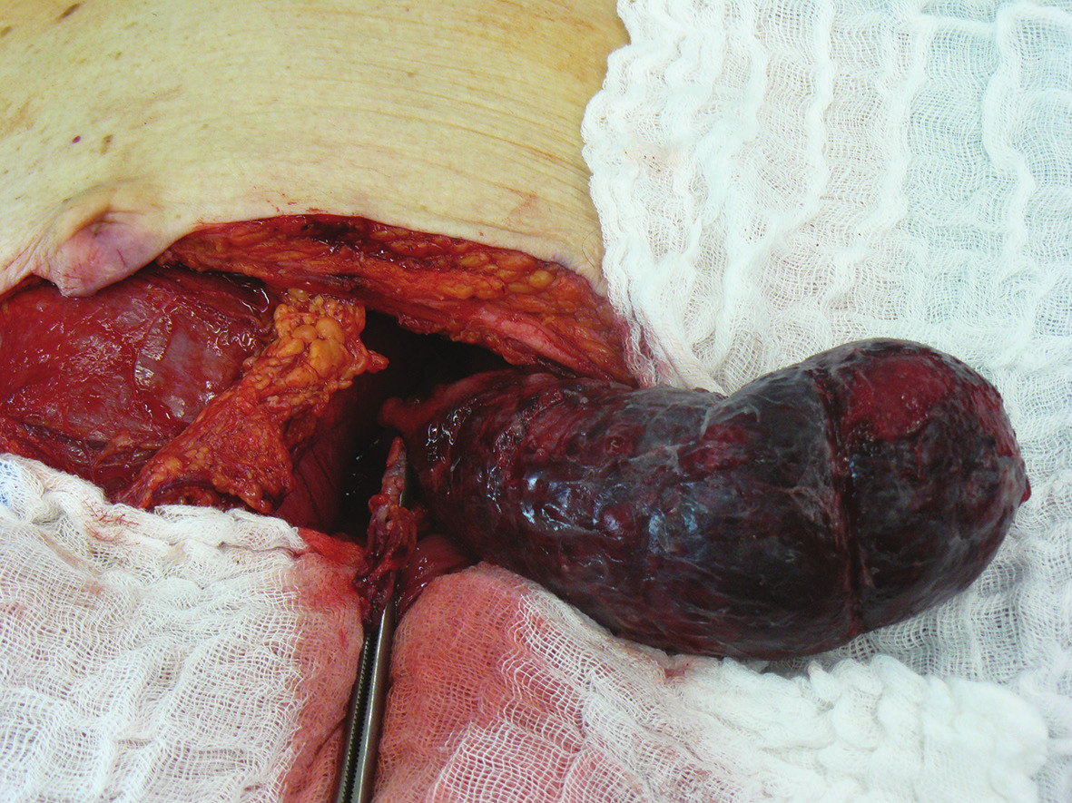 Peroperační nález invaginovaného úseku colon sigmoidei Fig. 4: Intraoperative finding of the invaginated portion in the sigmoid colon area