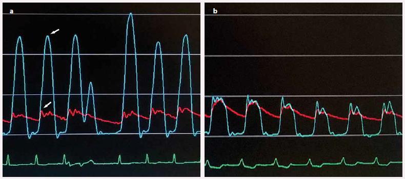 a) Invazivně měřený gradient ve výtokovém traktu levé komory (rozdíl tlakových křivek v hrotu levé komory (horní šipka) a výtokovém traktu (dolní šipka) před septální ablací; b) vymizení gradientu po septální ablaci.