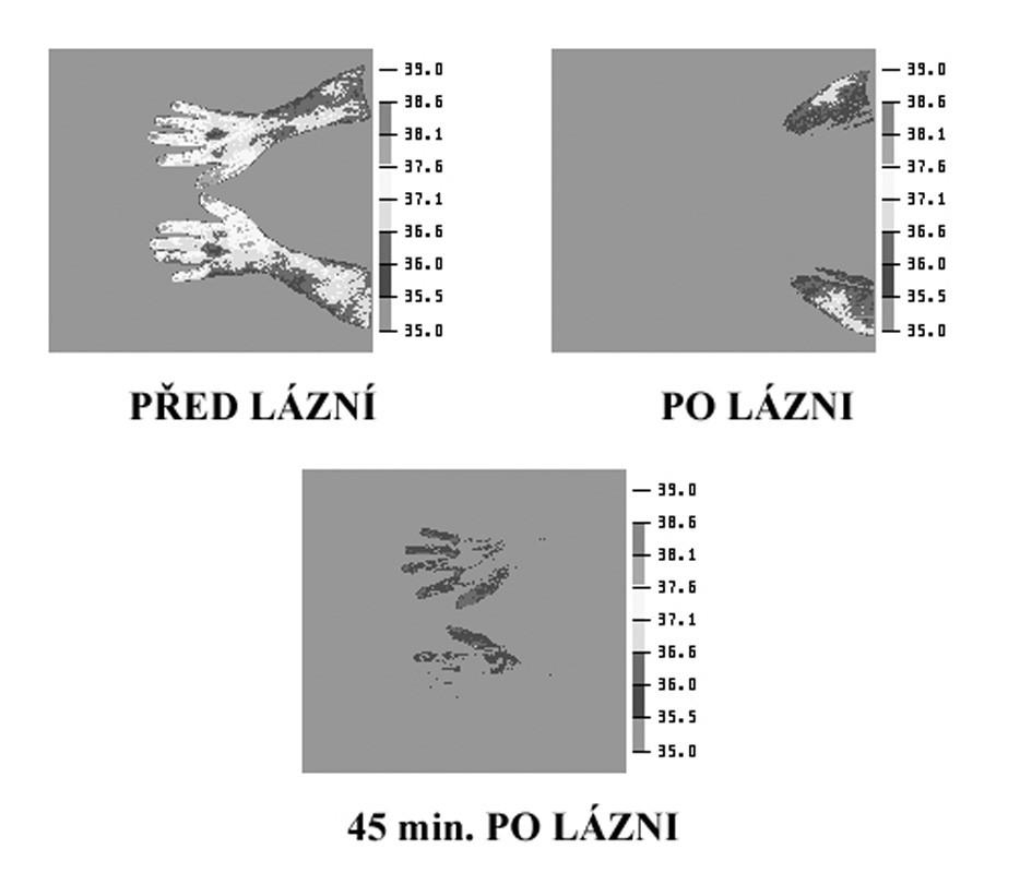 Termografie prstů metodikou podle Chuckera – typický obraz III. stadia onemocnění cév z vibrací Obrázek prezentuje tři termogramy z průběhu vyšetření. Jde o nález nemocného F. S., nar. 1945.