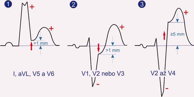 Projevy akutního infarktu myokardu při bloku levého raménka dle Sgarbossové.