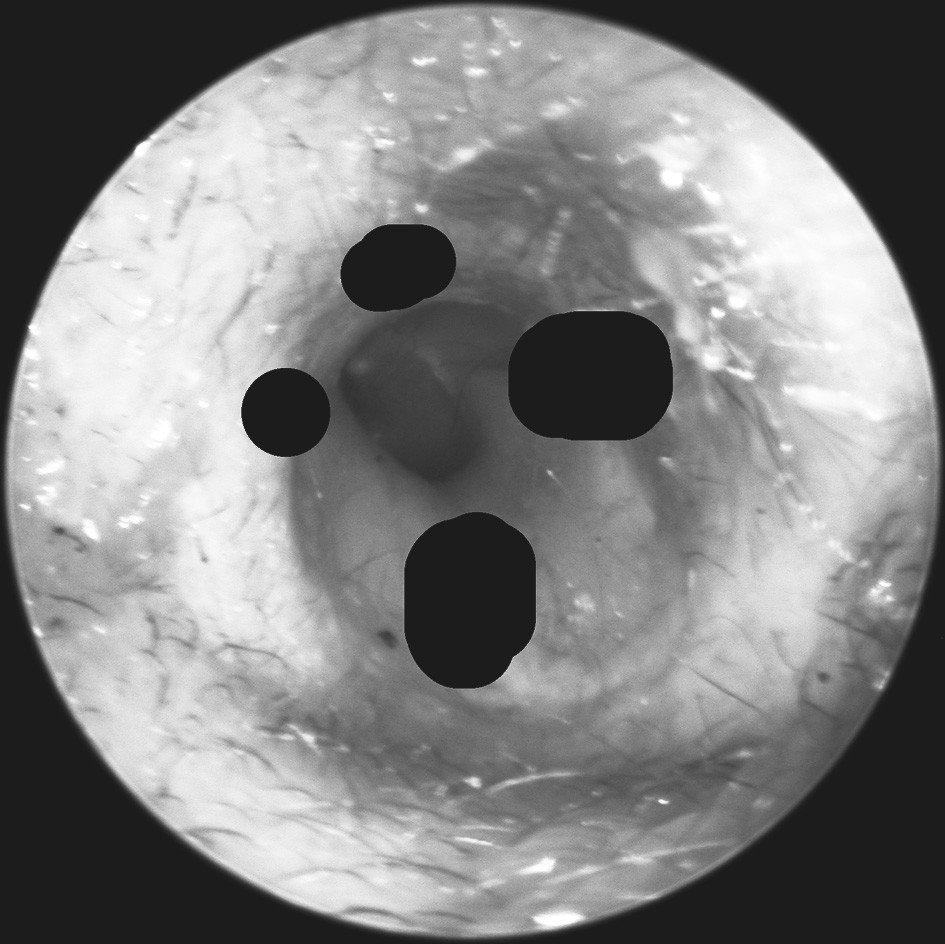 Pohled do levého zvukovodu. Vyznačeny jsou oblasti přední, horní a dolní stěny, ve kterých byl zvukovod palpován při sledování incidence Arnoldova reflexu.