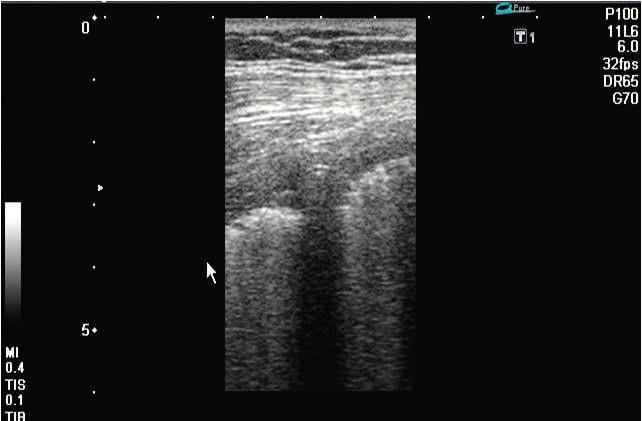 Stav po drenáži levostranného pneumothoraxu se správně umístěným 20F hrudním drénem Drén směřuje kraniálně pod přední hrudní stěnu. Je zachycen v příčném řezu lineární sondou (6 MHz) mezi parietální a viscerální pleurou, do které vysílá echostín.