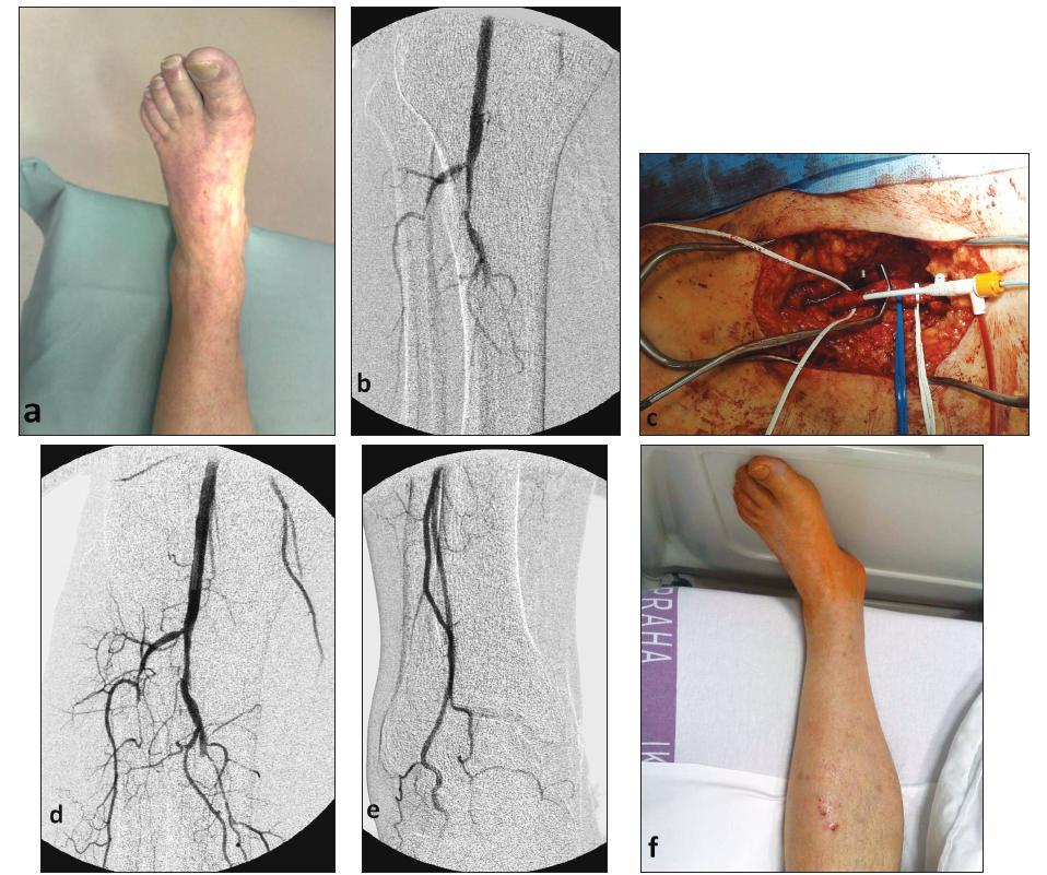 Obr. 1. a – klinické známky AKI II.B, b – peroperační angiografie po chirurgické trombektomii, c – vypreparovaná femorální bifurkace se zavedeným katétrem pro IAPTL, d – peroperační angiografie po 30minutové kontinuální IAPTL, e – peroperační angiografie po 30minutové kontinuální IAPTL, f – končetina 12 hodin po výkonu Fig. 1. a – clinical signs of type II B acute limb ischemia (AKI), b – peroperative angiography following surgical thrombectomy, c – preparated femoral bifurcation, with a catheter for percutaneous intraarterial thrombolysis (IAPTL), d – intraoperative angiography following 30- minute continuous IAPTL, e – intraoperative angiography following 30- minute continuous IAPTL, f – the limb, 12 hours after the procedure