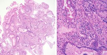 Histologické vyšetření bioptických vzorků – tělo žaludku plochá sliznice.