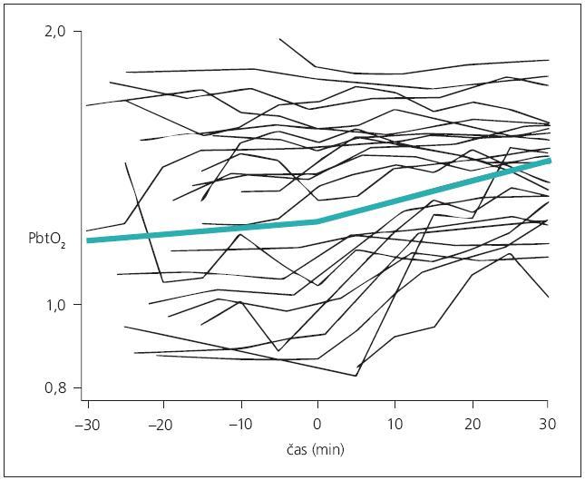 Lineární model (sv. zelená křivka) dynamiky PbtO<sub>2</sub> v průběhu kraniotomie (čas 0). Po provedení kraniotomie dochází k nárůstu PbtO<sub>2</sub> spíše u pacientů s nižšími vstupními hladinami PbtO<sub>2</sub>, zatímco u pacientů s vyššími hladinami k výraznému nárůstu nedochází. U celého souboru dynamika změn hladin PbtO<sub>2</sub> není statisticky významná.