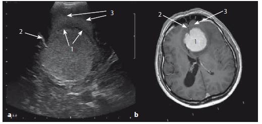 Meningeom čichové rýhy – srovnání axiálních sonografických a MR T1W obrazů. Fig. 12. Olfactory meningeoma – comparison of axial ultrasound and MRI T1W images.