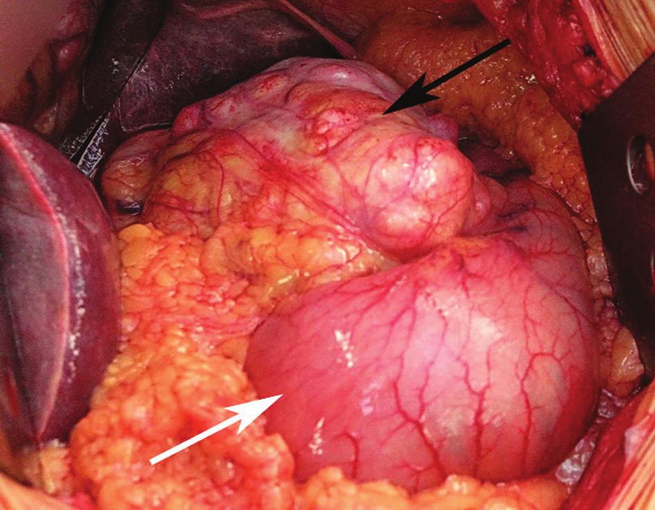 Rozsáhlý gastrointestinální tumor postihující malou křivinu žaludku (černá šipka), zbytek žaludku je bez makroskopicky patrných změn (bílá šipka) Fig. 1: Bulky GIST affecting the lesser curvature of the stomach (black arrow) while the rest of the stomach shows no macroscopically detectable changes (white arrow) Foto: MUDr. Petr Lochman, Ph.D.