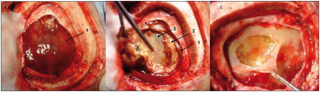 Peroperační snímky u pacienta z kazuistiky 1. a) Nález tuhé lesklé hmoty organizovaného hematomu (1) po durotomii. b) Po částečném odstranění tuhých hmot (1) viditelná septa (2) a vnitřní list (3). c) Finální stav po perforaci vnitřního listu nad fluktuací.