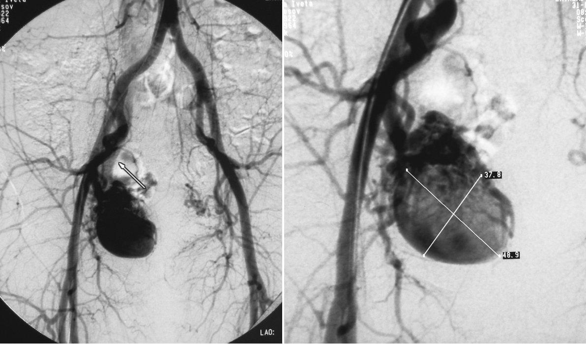 a, b. Pacient č. 2. DSA vyšetrením zobrazená aneuryzma arteria ilaca interna vpravo veľkosti 49x38mm Pic. 4a, b. Patient Nr. 2: DSA examination revealing the internal iliac artery aneurysm on the right, measuring 49x38mm