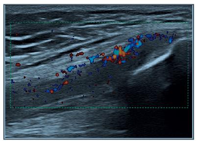 Obr. 2f Pozitivní PD signál v místě úponu quadricepsu.