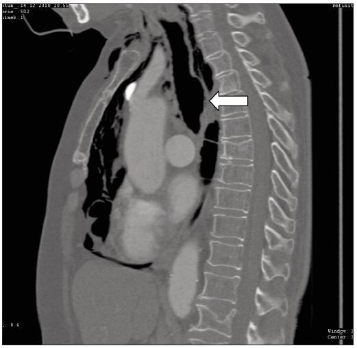 Druhý případ, CT vyšetření asi 3 hod od poranění prokazuje pneumomediastinum a pneumocolum, patrná asi 30 mm dlouhá trhlina pars membranacea v distální části trachey (šipka)