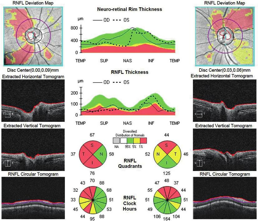 OCT papíl zrakových nervov oboch očí s jasným poklesom hrúbky RNFL.