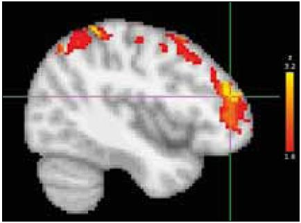 Fig. 3. BoNT treatment effect in group B: location, dorsolateral prefrontal cortex (DLPFC) of the most significant decrease of activation after BoNT treatment (group post-hoc contrast overlaid on the MNI anatomical template). Right side of the brain is displayed on the left.