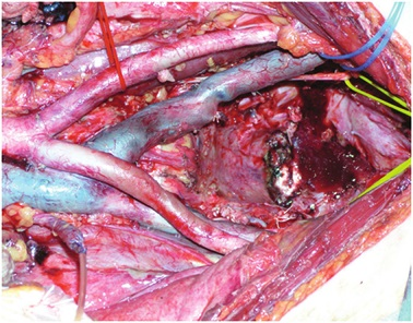 Stav po totální pelvické exenteraci Fig. 1: Small pelvis after total pelvic exenteration