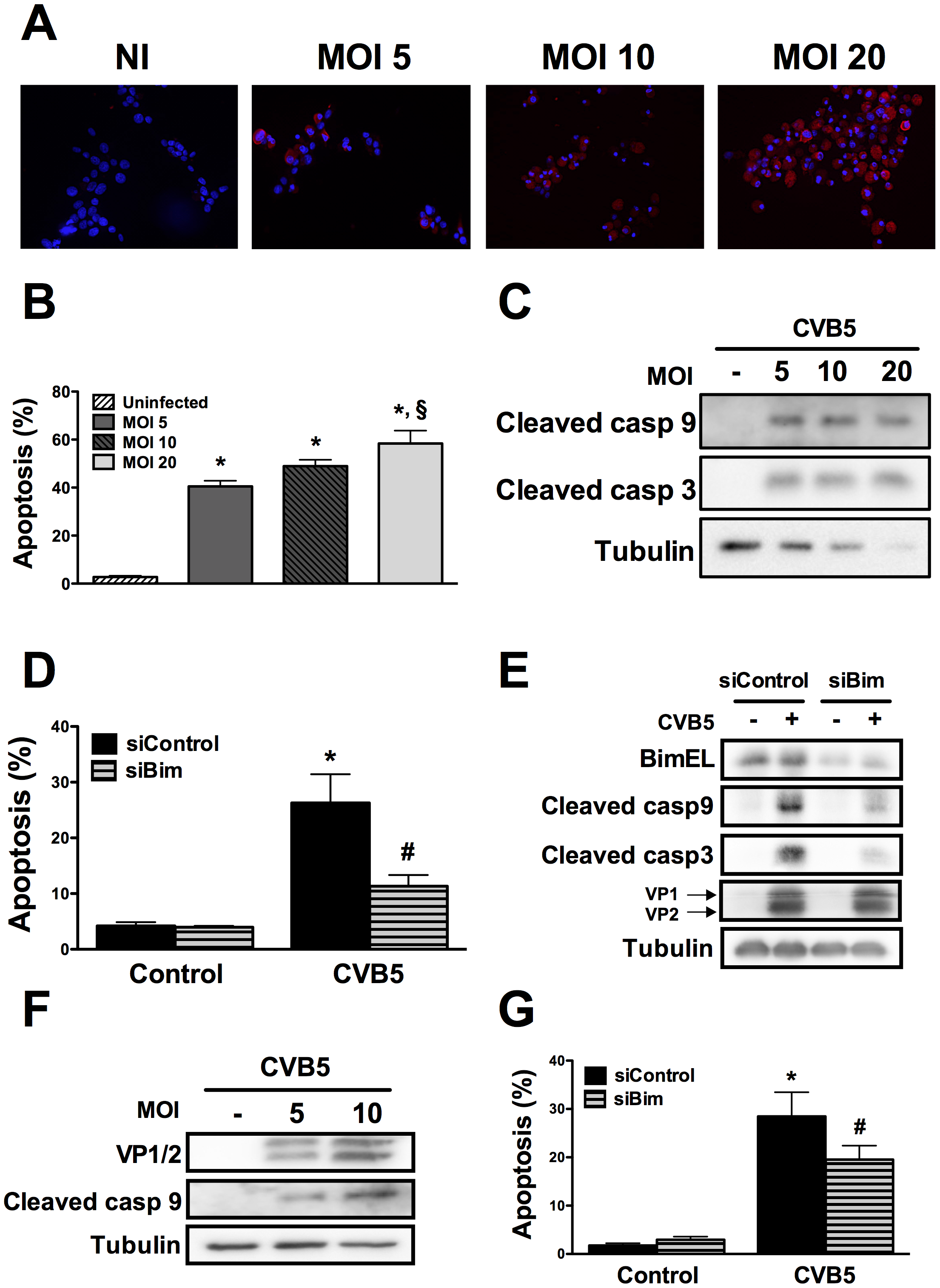 CVB5 infection induces apoptosis in beta cells via the BH3-only protein Bim.