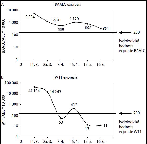 Zmena expresie génu BAALC (A) a WT (B) v reálnom čase počas liečby pacienta s AML-M3.