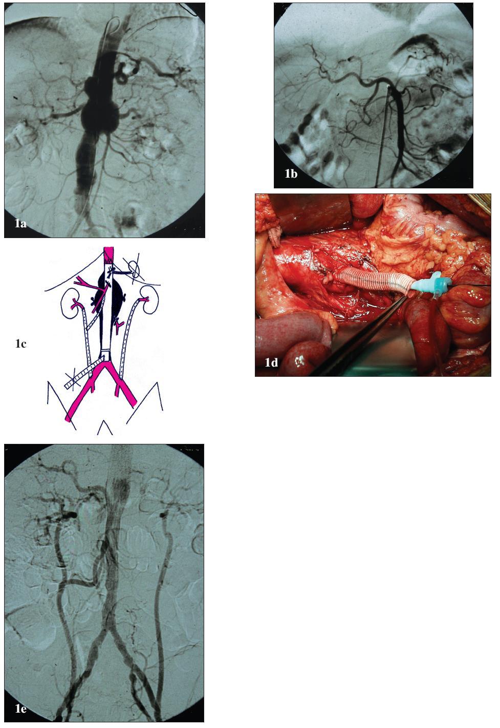 """Muž 61 let s vysokým operačním rizikem a TAAA IV 1a: Předoperační angiografie. Výduť začíná v oblasti bránice, zaujímá odstupy viscerálních a renálních tepen a končí v bifurkaci aorty. 1b: Předoperační angiografie. Anomální odstup AHC z AMS. 1c: Schéma kombinované léčby. K revaskularizaci levé AR je založen iliko-renální bypass z levé AIC. K revaskularizaci pravé AR je založen bypass z pravé AIC s odstupem pro AMS. Revaskularizace TC není nutná – nejdůležitější větev, AHC, odstupuje anomálně z AMS. Slezina je vyjmuta a pro zásobení žaludku a pankreatu je dostatečný kolaterální oběh z oblasti AMS. Vyřazené aortální větve jsou centrálně uzavřeny pomocí ligatury. K zavedení stentgraftu je založen přechodný alternativní přístup. Výduť je exkludována pomocí tubulárního aortoaortálního stentgraftu. Endovaskulární fixace v dolním krčku je podpořena pomocí aortálního bandingu. 1d: Peroperační pohled. Laparotomie, retroperitoneální prostor s aortou a """"temporary aortic conduit"""". 1e: Pooperační angiografie. Technicky úspěšná exkluze výdutě a orgánová revaskularizace. Fig. 1. Male, aged 61, with a high operative risk and TAAA IV 1a: Pre-operative angiography. The aneurysm starts in the diaphragm areas, involves the origins of the visceral and renal arteries and ends in the aortic bifurcation. 1b: Pre-operative angiography. Anomalous origin of arteria hepatica communis from SMA. 1c: Combined treatment drawing. An iliac-renal bypass from the left CIA was created for the revascularisation of the left RA. For the revascularisation of the right RA, a bypass was created from the right CIA with an attachment for SMA. No CT revascularisation is required – the most important branch, common hepatic artery, originates anomally from SMA. The spleen has been removed and the collateral circulation from SMA area is enough for supplying the stomach and pancreas. The aortic branches are centrally closed by ligation. A temporary alternative access has been created for stent-graft introduction. T"""