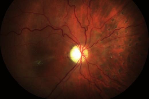 Sumovaný snímek dvou barevných fotografií očního pozadí 2 měsíce po operaci: retinální řečiště je průchodné, ale nepravidelně ztenčené a omezeně plněné (zejména nazální kvadrant). Papila je bledá – počíná atrofie, v nazálním kvadrantu přetrvává žlutý embolus v arteriálním řečišti