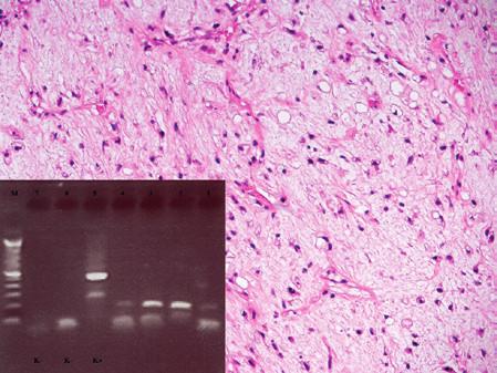 Kazuistika 4. Myxoidní liposarkom. Patrná je hojná kapilarizace, myxoidní stroma a roztroušené nádorové buňky, z nichž některé se diferencují v lipoblasty. Barveno hematoxylinem a eozinem (původní zvětšení 100x). Vložený obrázek: Agarózový gel s detekcí fúzního genu FUS/DDIT3, který je produktem translokace t(12;16). Zprava: 1. Slabá amplifikace fúzního genu FUS/DDIT3 ve vzorku z primárního nádoru (RNA izolovaná z parafínového bloku z roku 2007), 2. vzorek z pravé axily – rok 2009, 3. vzorek recidivy v pravé axile – rok 2011, 4. vzorek z myokardu (RNA izolovaná z parafínového bloku), 5. pozitivní kontrola RT-PCR, 6. negativní kontrola RT, 7. negativní kontrola PCR, M - 100 bp velikostní marker.