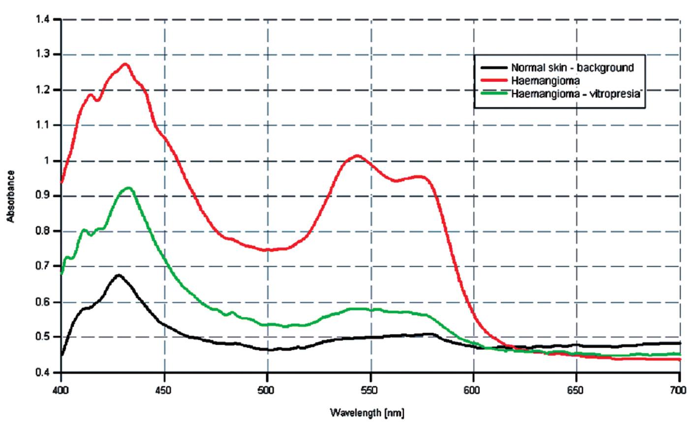 Spektrálne krivky u pacienta s hemangiómom pri vitropresii